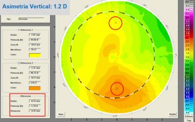 Topografía corneal: curso básico.